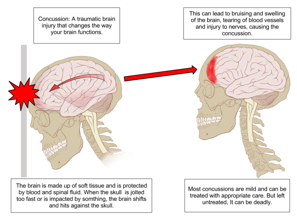 Concussions+can+impair+several+brain+functions%2C+from+emotion+to+breathing.+